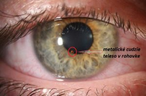 corneal-foreign-body